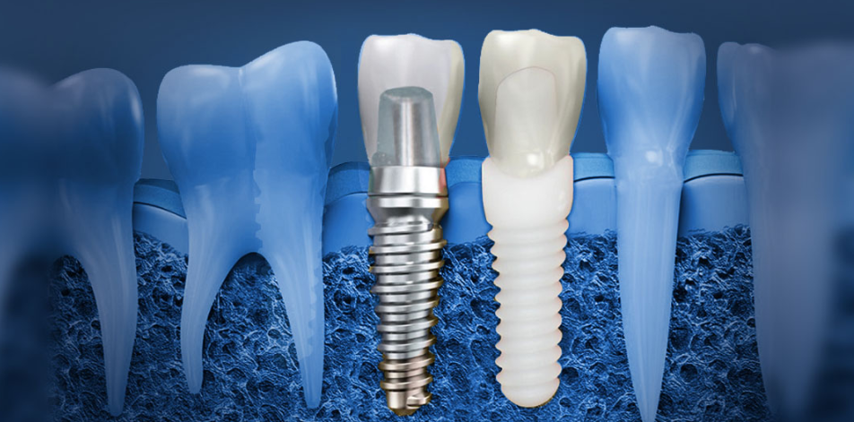 Use of Titanium in Dental Implants_1