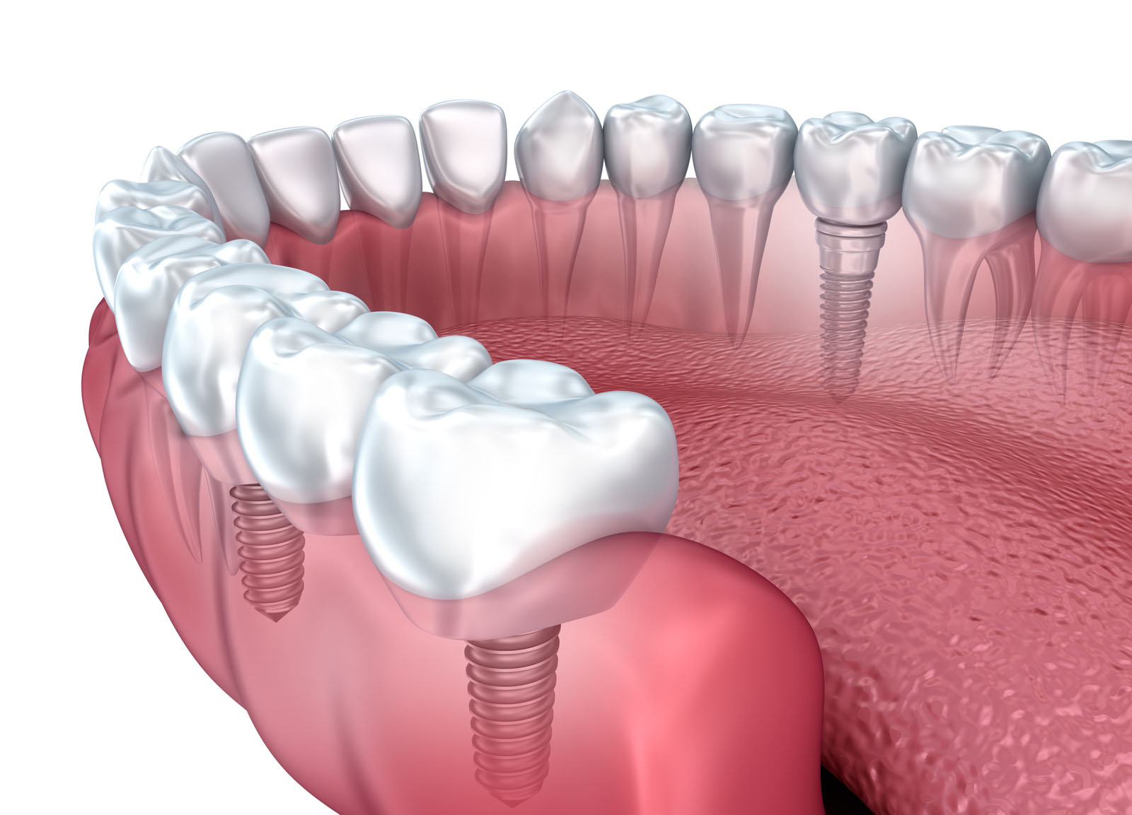 Lower teeth and dental implant transparent render isolated on white .