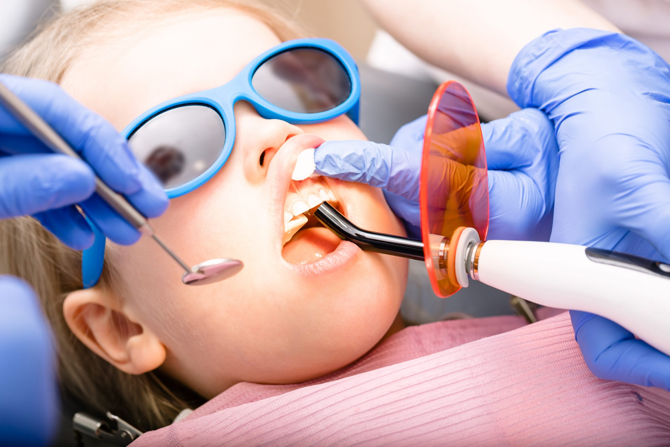 Dentist performing dental filling procedure to a little girl in pediatric dental clinic. Doctor using dental ultraviolet curing light for filling polymerization